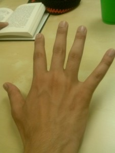 Golden/Fibonocci's Number on a human hand.